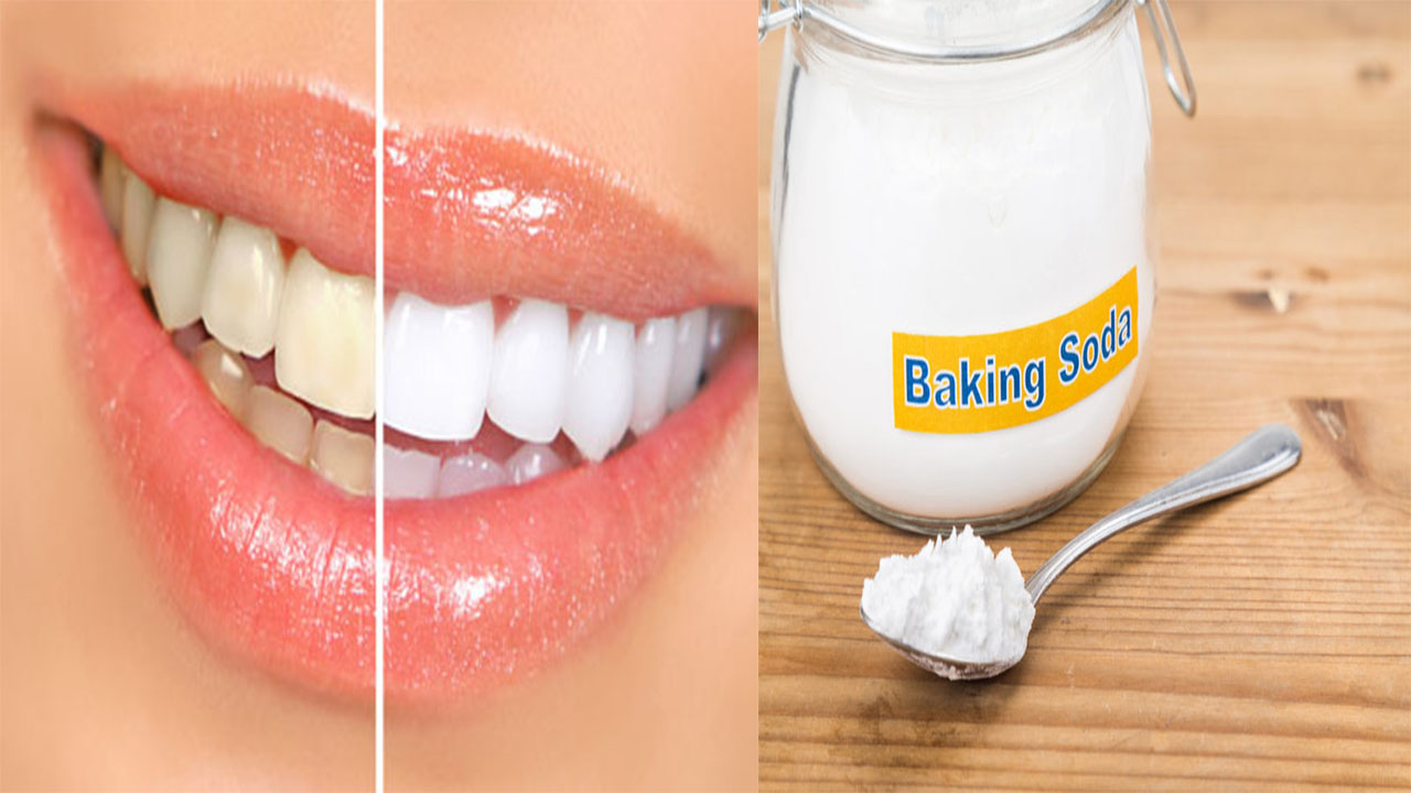 Summary Baking Soda And Lemon Juice For Teeth Whitening