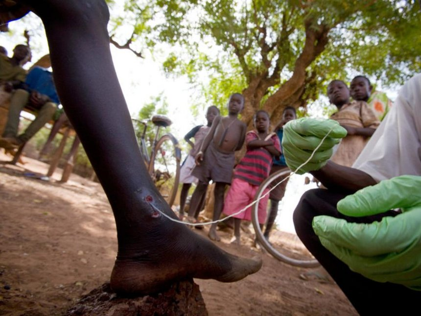 parasitic infections in kenya Hookworm infection with n americanus was the second most common geohelminth infection with a low prevalence rate of 39% compared to that reported in related studies in kenya at 112% kisumu and 749% kilifi.